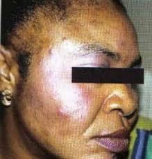 Black skin discoloration   Mololo cosmetics