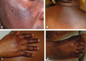 Bleaching the skin | Mololo Cosmetics