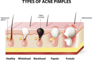 Types of acne | Mololo Cosmetics