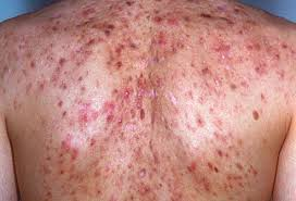 back pimples | Mololo cosmetics