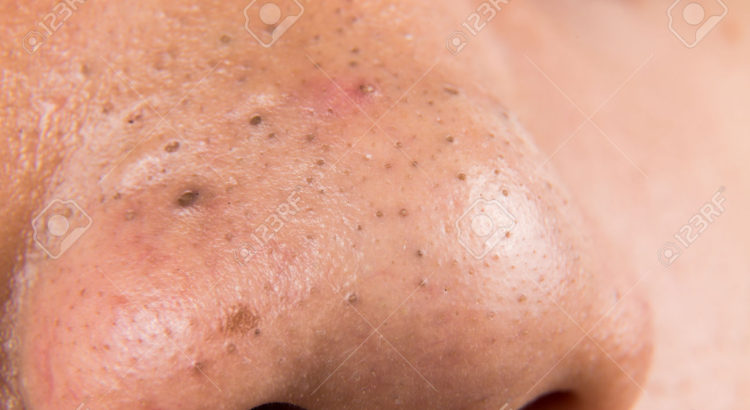 pimples and acne