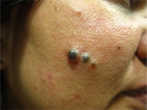 Melanocytic Nevi | Mololo Cosmetics