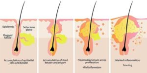 Hair follicle and sebaceous gland | Mololo cosmetics