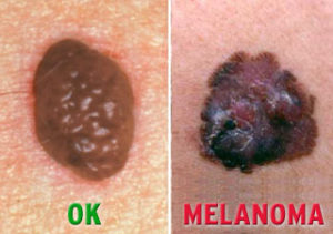 Melanoma | Mololo Cosmetics