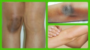 dark knuckles, elbow, knees | Mololo cosmetics