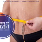How To Prevent Your Body From Stretch Marks – 8 Tips To Help You Prevent These Ugly Scars