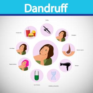 causes of dandruff in picture | Mololo cosmetics