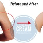 How to Remove Stretch Marks With This DIY Stretch Mark Cream