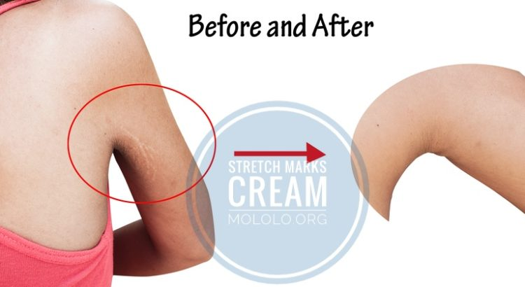 best stretch mark removal cream