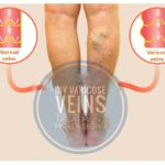 Veins in Legs: How To Cure Varicose Veins With This Home DIY