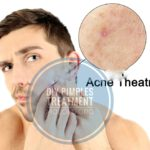 Acne Remedy: Here is How To Treat Pimples at Home