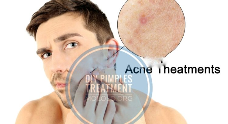 How To Treat Pimples at Home | mololo.org