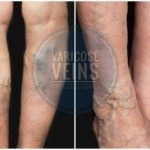 What You Probably Don't Know About Varicose Veins