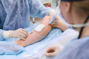 varicose veins surgery | mololo.org