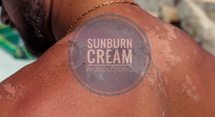 DIY Sunburn Cream | mololo.org