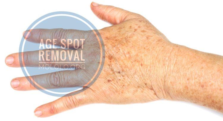 age spot removal | mololo.org