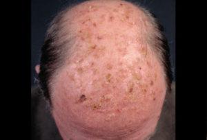 Solar keratosis | Mololo Cosmetics