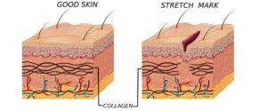 prevention of stretch marks | Mololo cosmetics