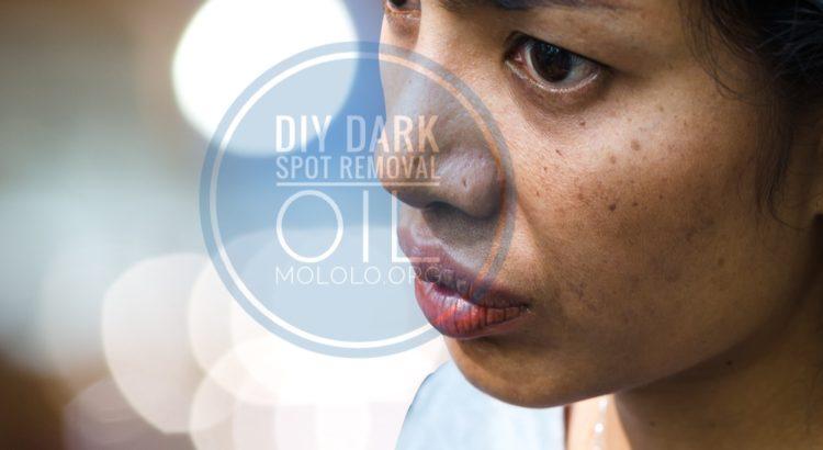 dark spot removal | mololo.org