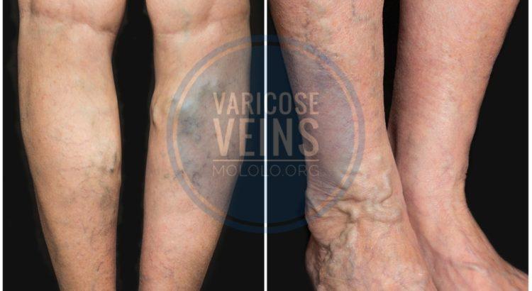 varicose veins | mololo.org