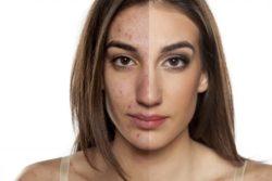 2 Unusual Methods Sarah Used To Eliminate Her Akne Problem