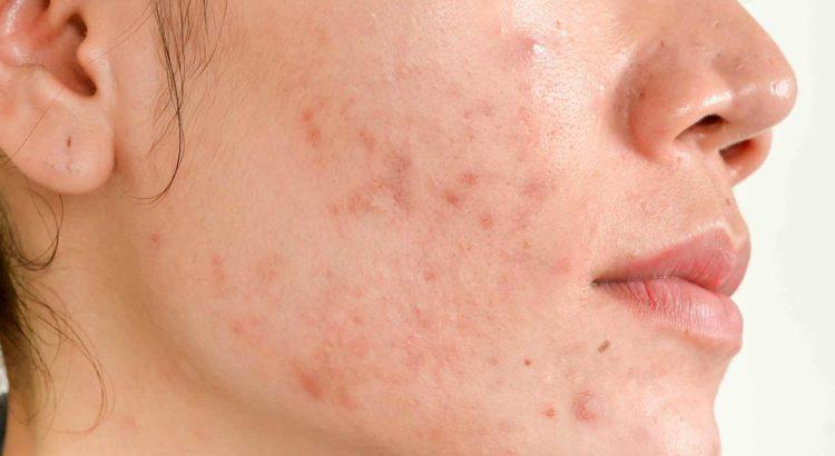 acne outbreak | Mololo Blog