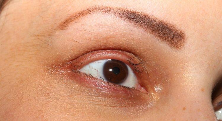 5 Main Causes of Eyelash Loss